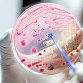 Petrischale mit Bakterienkultur im Labor von einer Hand gehalten